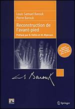 Reconstruction de L´Avant-Pied + Cd